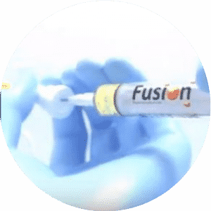 Fusion Raises $105m in Series B Financing.